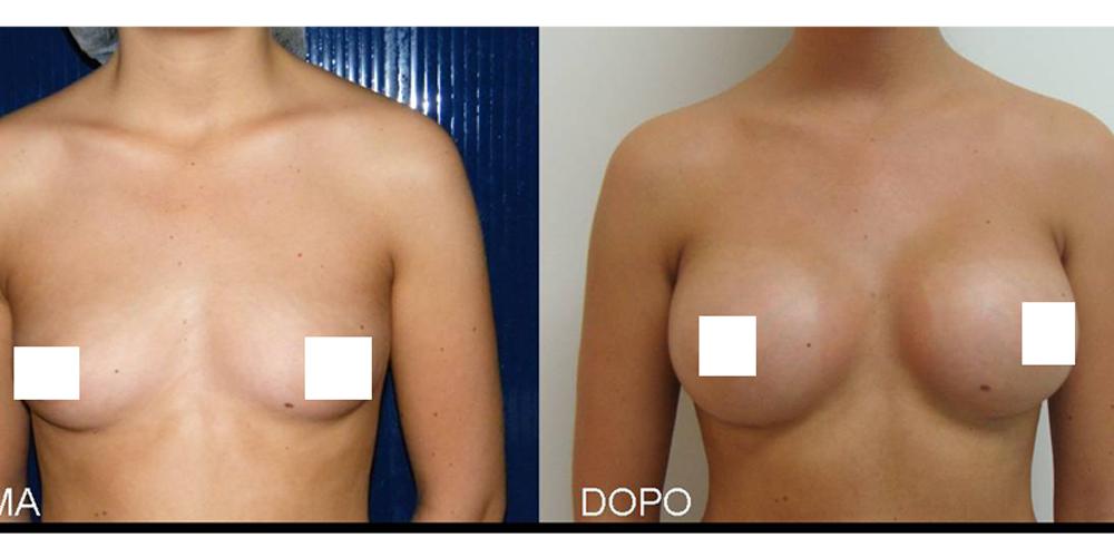 Portare la tela di lino di compressione dopo aumento di un petto
